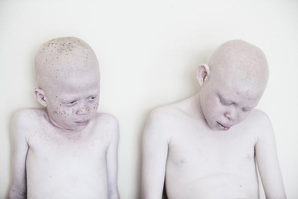 Проект Под тем же солнцем фотограф Marina Masseus Эта серия фотографий была создана в сотрудничестве с Josephat Torner Foundation и Stichting Afriaanse Albinos для привлечения внимания к