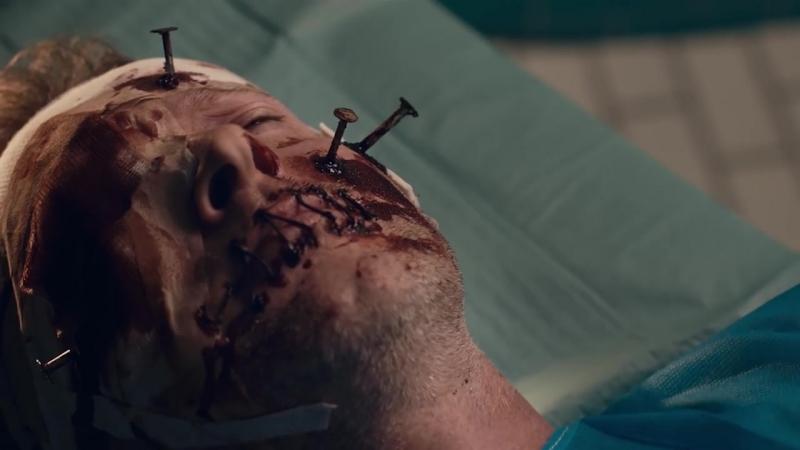 Хирургия (Surgery) 2015, короткометражный фильм ужасов