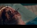 Хирургия Surgery 2015, короткометражный фильм ужасов
