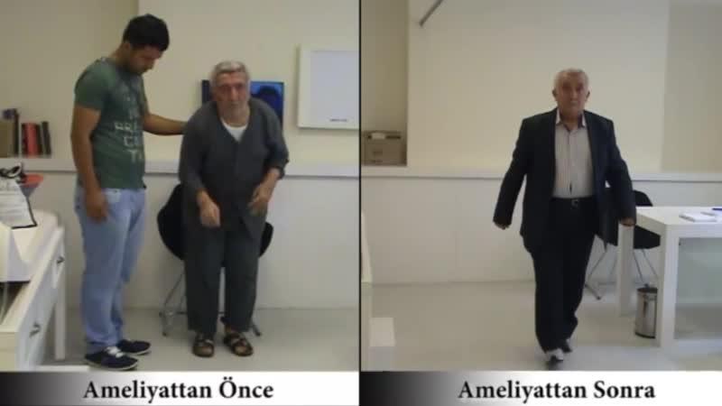 Лечение Паркинсон до и после, Доктор медицинских наук Врач - нейрохирург Али Зирх