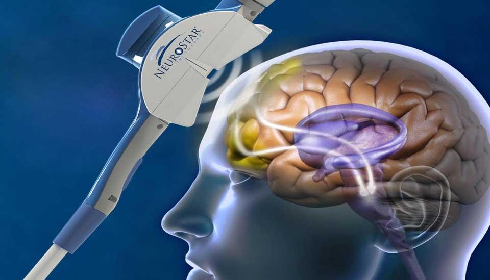 Может ли транскраниальная магнитная стимуляция лечить болезнь Альцгеймера