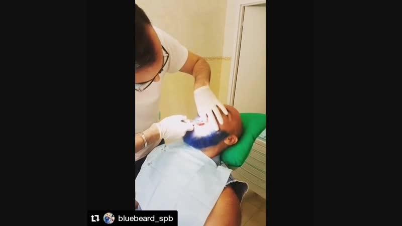 Удаление зуба Быстро и аккуратно