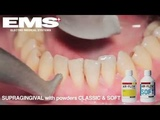 Air Flow Teeth Polishing Solihull