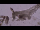 Amoeba hunts and kills paramecia and stentor to music by Lamar Genesis Winter Zimmer