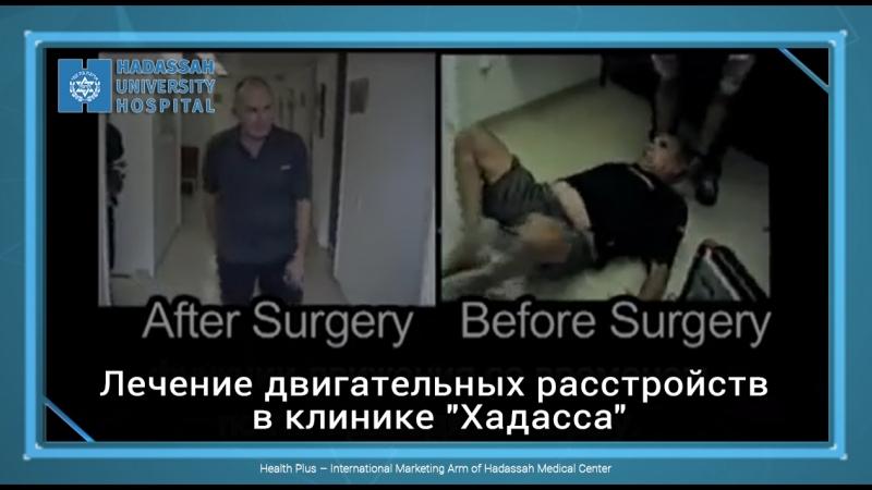 Лечение двигательных расстройств в клинике Хадасса