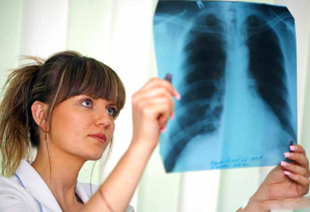 Детский пульмонолог анализирует результаты рентгеновского сканирования.