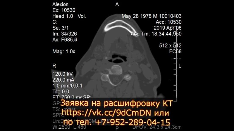 Травма костей черепа и гематомы головного мозга на КТ расшифровке
