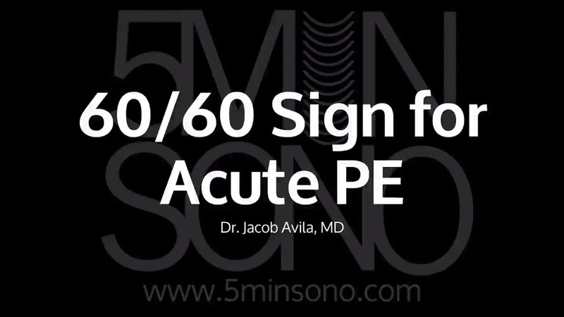 60 60 Sign for Acute PE