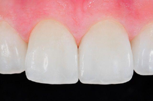 Стоматолог о зубных имплантах