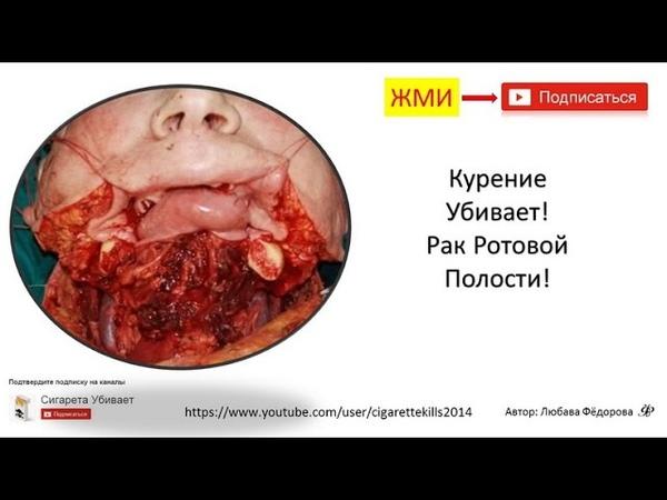Курение Убивает! Рак Ротовой Полости