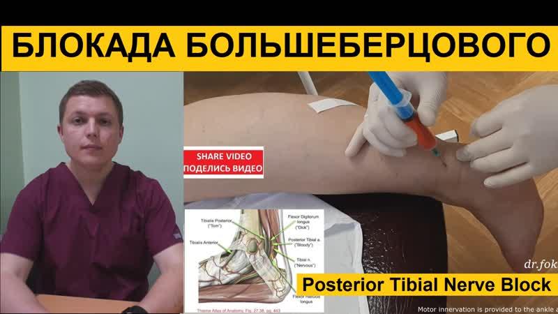 Posterior Tibial Nerve Block Блокада большеберцового нерва по Брауну Техника блокады лодыжки