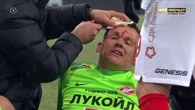 Ребров получил травму головы в столкновении с Фарфаном (Видео)