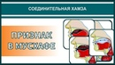 Айман Сувейд. 5. Соединительная хамза: ПРИЗНАК В МУСХАФЕ (с субтитрами на русском)