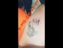 Удаление татуировки в Челябинске