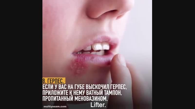 Меновазин лечит 13 болезней! Экономьте деньги — берегите здоровье!
