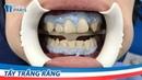 Tẩy trắng răng tại phòng khám Nha khoa Paris