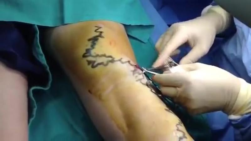 Варикозное расширение вен Хирургическое лечение