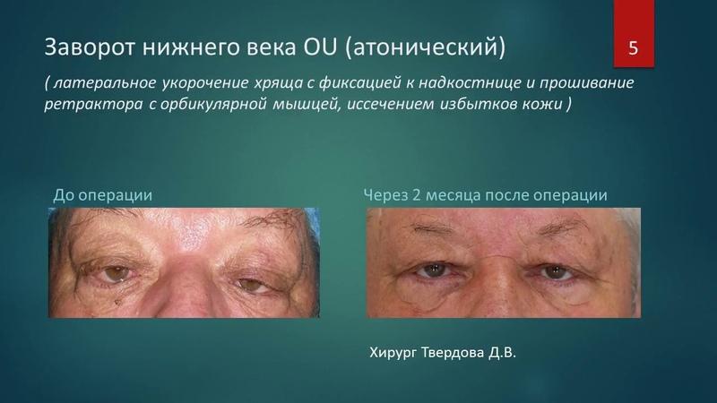 Офтальмопластическая хирургия. Твердова Диана Валерьевна, Краснодар, Россия.