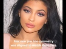 Kylie Jenner's Plastic Surgery Transformation