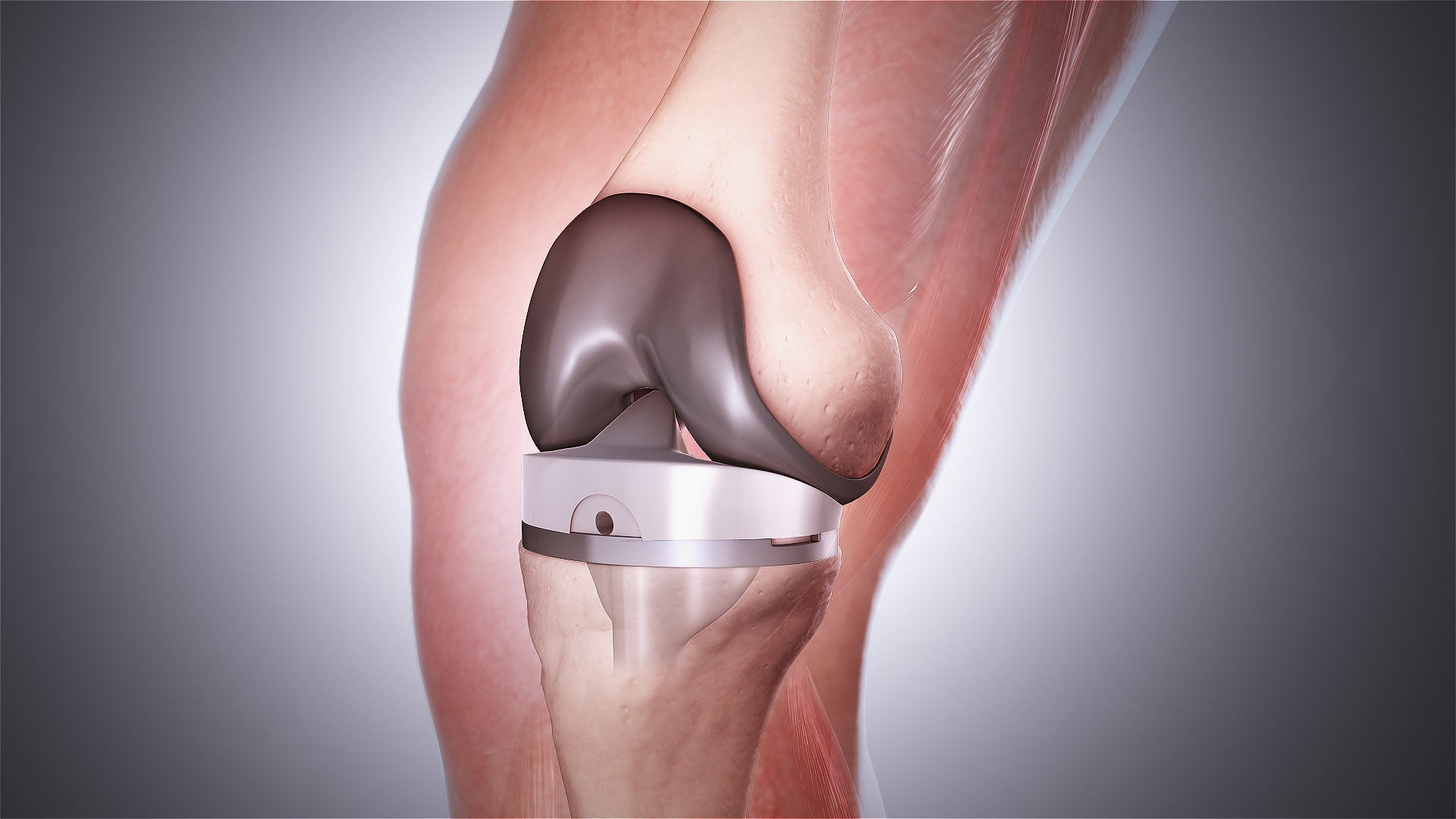 Восстановление после замены коленного сустава