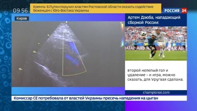 Новости на Россия 24 • Проследит и сообщит в Кировской области заработала Опека
