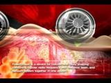 POWERSHAPE www.power-shape.com non invasive body contouring using Rf+laser+vacuum