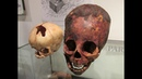 Unwrapping A 2000 Year Old Red Haired Elongated Baby Skull In Paracas Peru