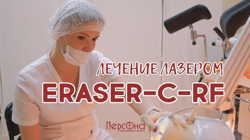 Лечение лазером Eraser C RF Центр Красоты и Здоровья Персона