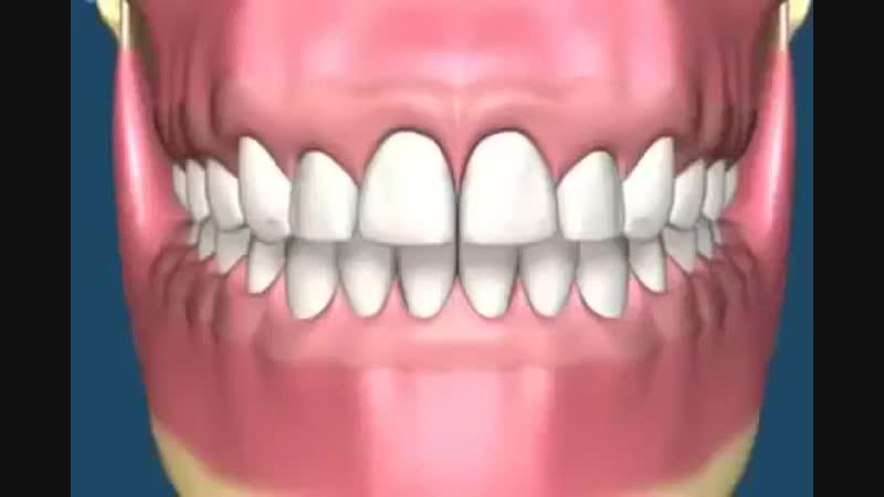 Ортодонтия Брекеты Выравнивание зубов.mp4
