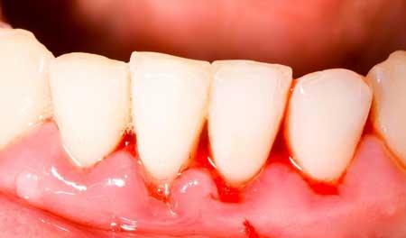 Пероральный ирригатор может быть лучше, чем зубная нить для людей с чувствительными кровоточащими деснами.