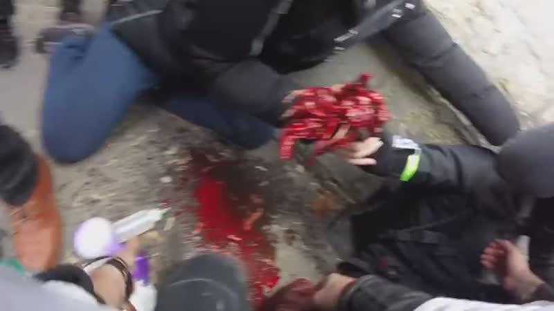Voici la vidéo de la blessure de Sébastien hier lors de l'acte 13 le 09 02 2019 n'hésitez pas a partager