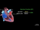 Cardiac output stroke volume EDV ESV ejection fraction