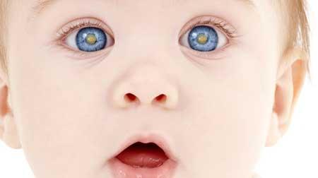 Катаракта может появиться вблизи центра линзы или под линзой возле зрачка глаза.