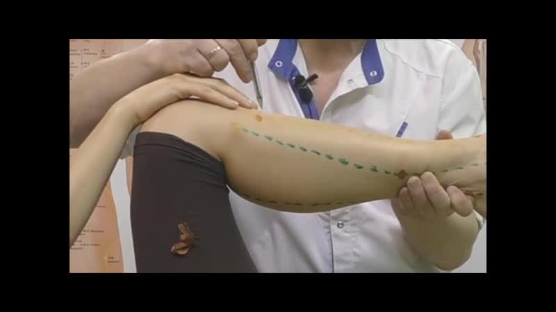 Секреты китайской медицины. Точка Цзу сань ли. Меридиан желудка Е36.