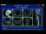 Мумия на томографе