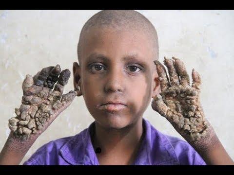 Редкая болезнь превращает 8-летнего мальчика из Бангладеш в камень