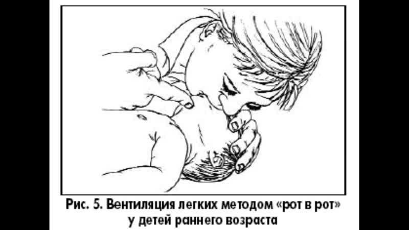 Советы доктора Синдром внезапной младенческой смерти
