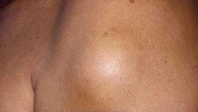 Жировик- это рост жировой ткани, которая медленно развивается под вашей кожей.