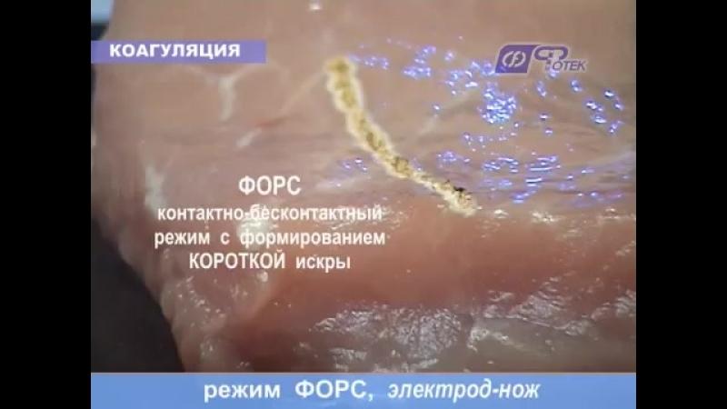 Видеоруководство по применению аппарата ФОТЕК Е81М. Радиоволновая хирургия