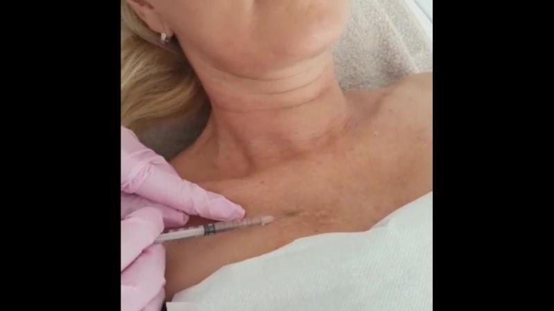 мезотерапия декольте дермахил дивин