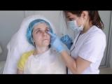 Коррекция носослезной борозды и мимических морщин лба