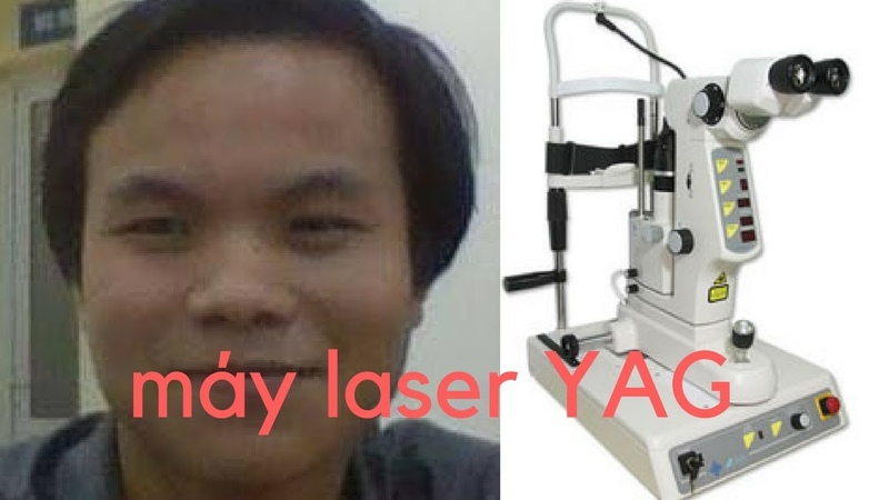 Những điều lưu ý khi mua máy Laser YAG-Phụ lục-các thông số rất quan trọng trong quá trình sử dụng