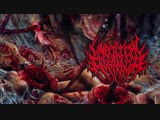 UMBILICAL ASPHYXIA - Limbless Target of Carnal Frustration