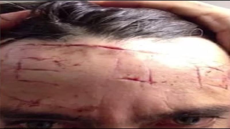 Jihadi inmate carves a terrorist slogan into his cellmate's head