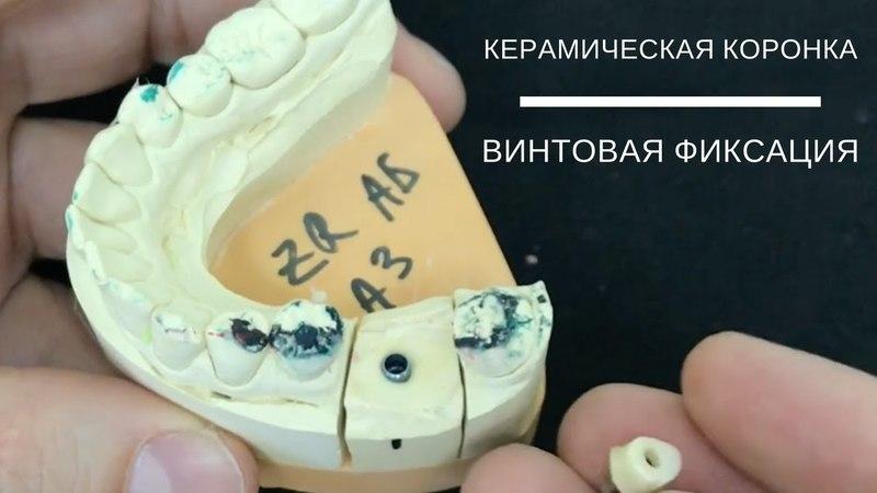 Керамическая коронка на импланте