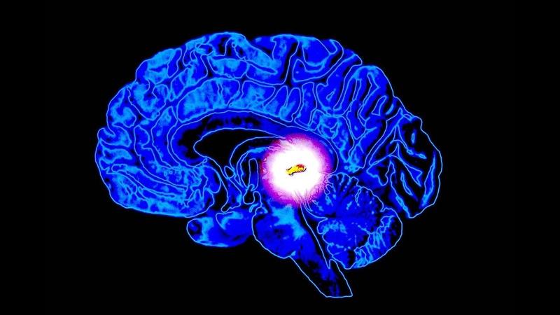 5 manières de décalcifier la glande pinéale (fonction et activation de la molécule de l'esprit)