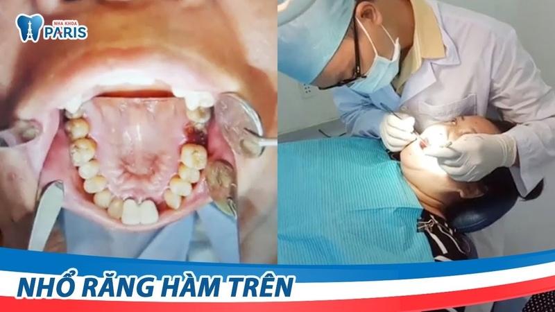 Nhổ răng hàm trên không đau tại Nha khoa Paris