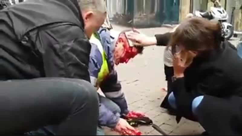 2019-01-12 FR, Bordeaux Ein weiterer brutaler Flash-Ball-Angriff auf einen Bürger