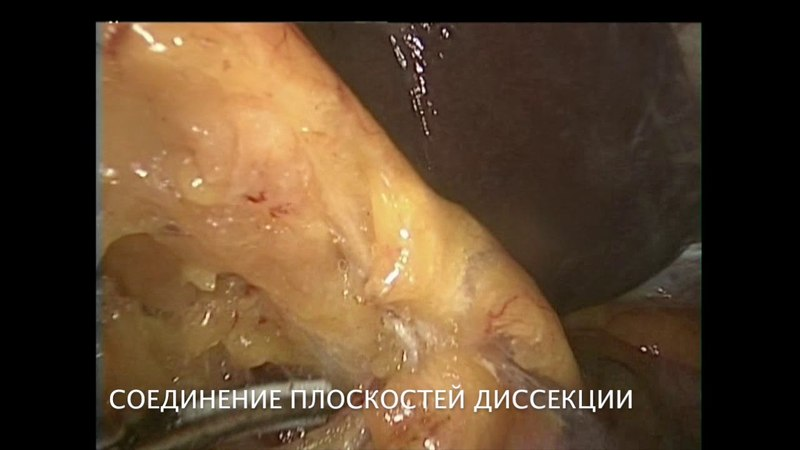 Laparoscopic distal pancreato-splenectomy (RAMPS)