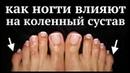 Что будет с коленями ЕСЛИ НЕ СТРИЧЬ НОГТИ на ногах